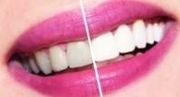 7-отбеливание зубов